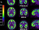 Quét não có thể phát hiện được ý định tự tử