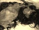Bị máy dệt lột hết da đầu nạn nhân còn trơ hộp sọ