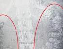 Hãi hùng 100 viên trân châu 5 ngày không tiêu trong bụng một bé gái ở Trung Quốc