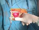 Trái tim lớn hơn ngón tay cái hồi sinh sau 2 lần phẫu thuật