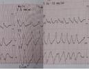 Nhịp tim lên tới 300 lần mỗi phút nam bệnh nhân suýt đột tử