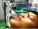 Kinh hoàng bé trai 13 tuổi bị 3 mũi tên găm vào hốc mắt