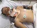 Quảng Bình: Người đàn ông tai nạn nguy kịch, bệnh viện thông báo tìm người thân