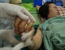 Mâu thuẫn khi chia đất, một cô giáo bị chồng cũ chém đứt hai tay