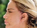 """""""Hoảng sợ"""" với gương mặt sau phẫu thuật thẩm mỹ của Katie Price"""