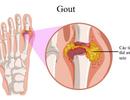 Suy giảm sinh lý vì bị gout, phải làm sao?