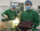 Nữ bệnh nhân mang u lách như cây nấm khổng lồ