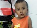 """Ánh mắt cầu cứu của cậu bé Khmer 5 tuổi có khuôn mặt """"già"""" hơn một đứa trẻ"""