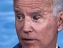 Con mắt đỏ máu của cựu Phó Tổng thống Mỹ Joe Biden gây xôn xao