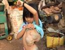 Giải cứu bé gái mang khối bướu chiếm 1/3 cơ thể
