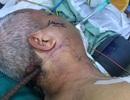 Hãi hùng với hình ảnh nạn nhân bị cây sắt lớn xuyên từ cổ đến xương hàm