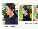 Bạch Mộc Nhiên – Giải pháp hỗ trợ điều trị nám, tàn nhang an toàn hiệu quả