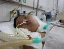 Sau 3 tháng hôn mê, nữ bệnh nhân tử vong vì căn bệnh dễ nhầm lẫn