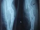 Hãi hùng với hình ảnh chân vịt ca nô chém gãy nát hai chân của nạn nhân