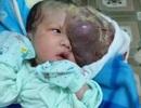 """Mẹ chết ngất nhìn con chào đời mang """"u khủng"""" dị thường trên mặt!"""
