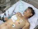 Một nam giới vỡ tim nguy kịch do tai nạn giao thông