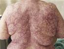 Kỳ lạ bệnh nhân nổi mạch máu toàn thân từ một bệnh quá thông thường