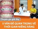 Thời gian niềng răng: 5 vấn đề quan trọng được chuyên gia giải đáp