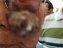"""Bác sĩ """"vá"""" mặt chữa khối u sần sùi  che hết nửa mặt bệnh nhân"""