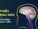 Giải pháp nào tốt nhất cho người thiếu máu lên não ?