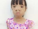 Vi diệu ca phẫu thuật đưa 2 mắt bé gái lại… gần nhau