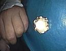 Bông hoa bằng sắt chui tọt vào thực quản bé trai 4 tuổi
