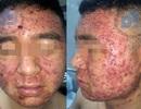 Phát hoảng với gương mặt chàng trai trẻ kín đặc mụn sau uống viên hoàn chữa trứng cá mua trên mạng