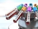 Phương pháp xét nghiệm máu mới giúp chẩn đoán ung thư vú trước 5 năm