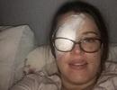 Người phụ nữ bị ung thư mắt, có nguy cơ phải khoét bỏ