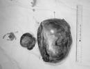"""Người phụ nữ tá hỏa vì khối u buồng trứng """"khủng"""" to gấp 10 lần bình thường"""