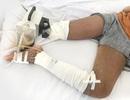 Bé gái mất chân vì thầy lang cắt da nặn máu độc