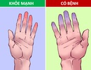30 giây kiểm tra sức khỏe tim mạch tại nhà chỉ với một tô nước đá