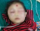 Bé gái 6 tuổi ở Phú Thọ suýt mất mạng chỉ vì nốt mụn nhỏ trên mặt