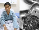 Ho khan 10 ngày, bác sĩ bất ngờ thông báo bị ung thư phổi