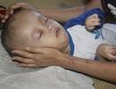 Xót xa cảnh vợ mù lòa ôm con bị não úng thủy nằm liệt giường suốt nhiều năm