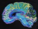 Các nhà khoa học tiến gần hơn đến vắc-xin sa sút trí tuệ