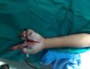 Bé trai 11 tuổi chi chít vết thương do tai nạn pháo nổ