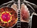 """Hai ca dương tính với virus viêm phổi lạ: """"Nguy cơ lây ra cộng đồng rất thấp"""""""