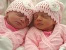 Hy hữu 2 cặp sinh đôi ra đời cách nhau 5 năm, cùng ngày Valentine