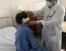 Chai xịt hen phế quản phát nổ, người phụ nữ suýt mất vành tai