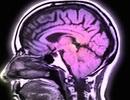 Covid-19 có thể gây hại cho não
