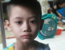 Ám ảnh nỗi buồn trên khuôn mặt của bé gái 6 tuổi bị bệnh ung thư hành hạ