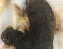 Kinh hoàng búi tóc khổng lồ chiếm gần hết dạ dày bé gái 11 tuổi