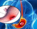 Bình Vị An - Giải pháp hỗ trợ giảm triệu chứng đau dạ dày