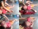 Bé trai nghi bị mẹ kế bóp cổ, đánh tới tấp vì không chịu ngủ
