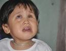 Thương bé gái khi sinh ra đã bị hỏng đôi mắt