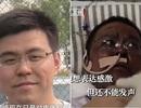Bác sĩ Trung Quốc bị đổi màu da vì Covid-19 qua đời