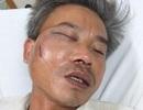 Nhân viên cây xanh bị đánh chấn thương nghiêm trọng lúc làm nhiệm vụ