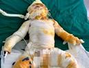 Vụ cháy phòng ngủ khiến cả gia đình bị bỏng: Hai bố con tử vong