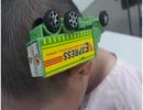 Bé trai 3 tuổi bị xe đồ chơi cắm vào đầu